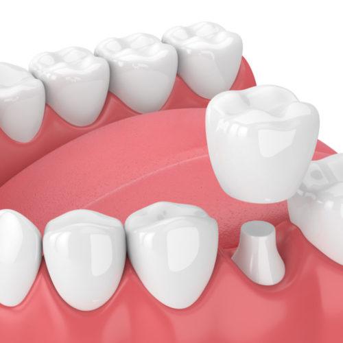 Pleasant-St-Dental-Crowns